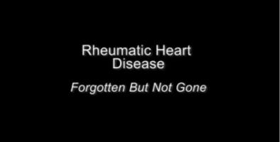 This short video includes sections of interviews with medical experts from across the globe talking about rheumatic heart disease. (includes subtitles)