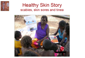 What is scabies, how do you get scabies, how do I know if I've got scabies, crusted scabies, what should I do, getting rid of scabies, what causes skin sores, what should I do, what is tinea, what should I do,