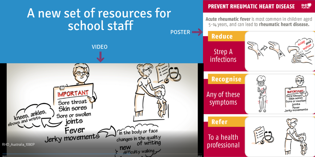 This poster and video have been developed to provide an overview of acute rheumatic fever and rheumatic heart disease for people working in schools.