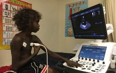 State of the art heart equipment arrives for NT kids