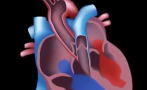 This video provides an overview of how RHD affects the heart and is part 3 of the Introduction to Acute Rheumatic Fever and Rheumatic Heart Disease online learning module.